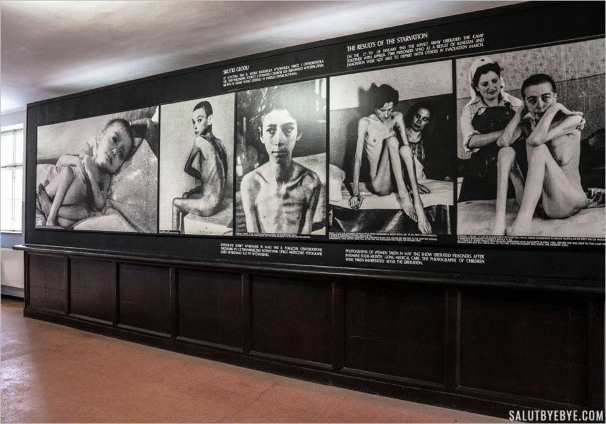 Les ravages de la malnutrition - Musée d'Auschwitz I